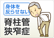 脊柱管狭窄症